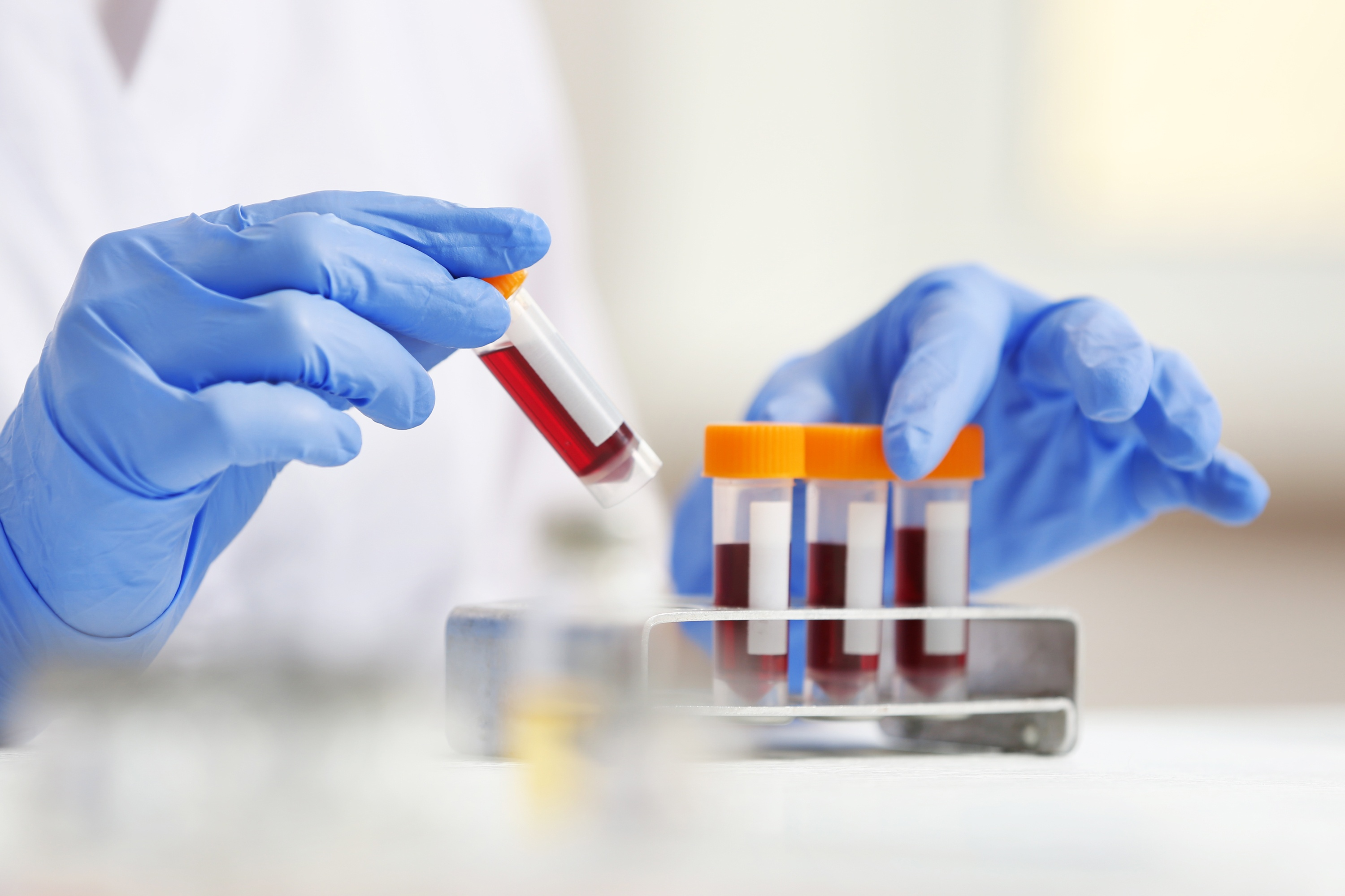 C Reactive Protein (CRP) Blood Test