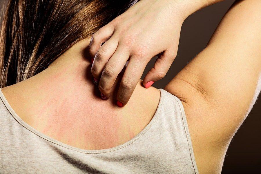 bigstock-woman-scratching-her-back-clos-102334589-min