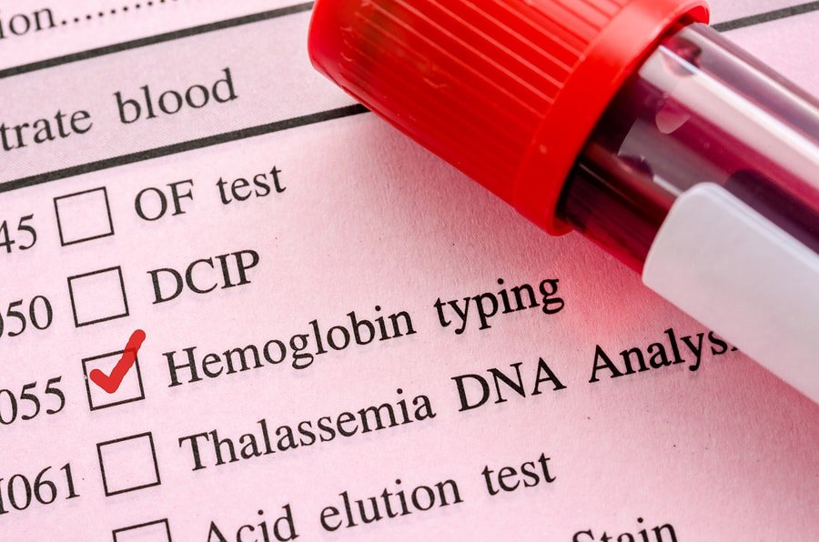 hemoglobin blood test: why high levels are both good & bad (+ normal