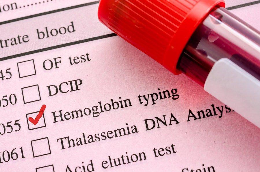 Hemoglobin test