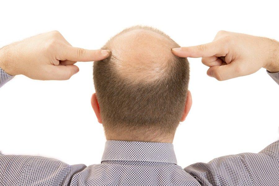 Minoxidil For Men Amp Women Hair Loss Side Effects