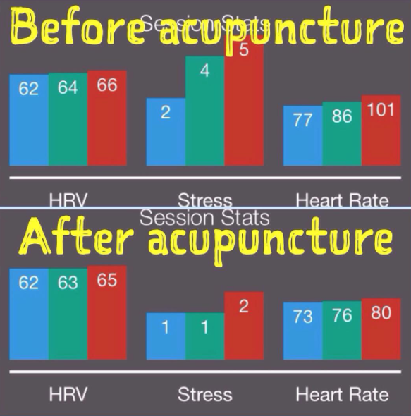9 benefits of acupuncture for weight loss anxiety more selfhacked during a particularly stressful period i measured my hrv in the morning prior to an acupuncture treatment after this particular acupuncture treatment fandeluxe Gallery
