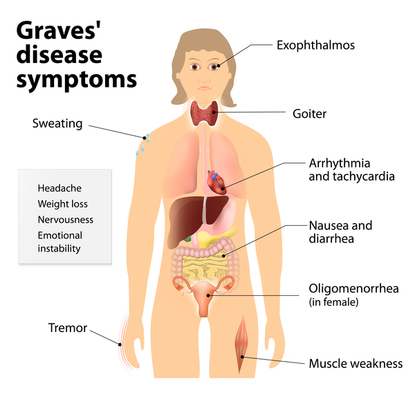 Graves Disease Image Credit: https://ghr.nlm.nih.gov/condition/graves-disease