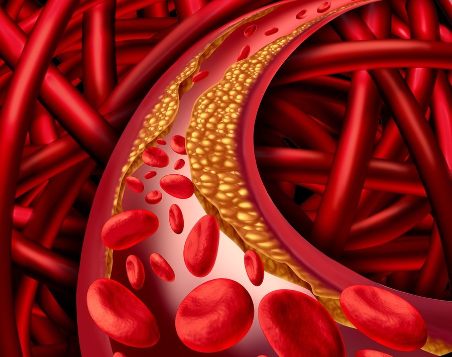 Artery Disease
