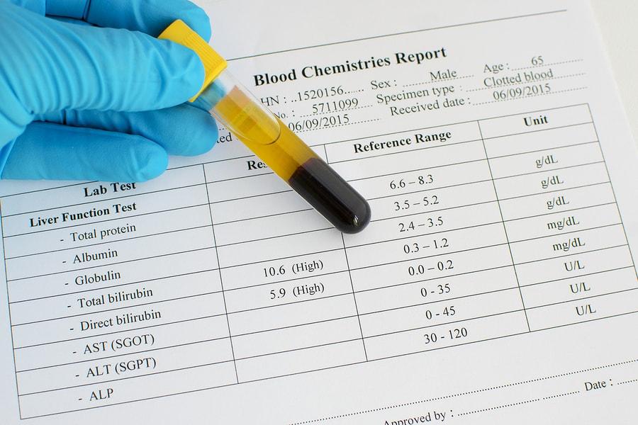 Urobilinogen in Urine: Low & High Levels + Normal Range - SelfHacked