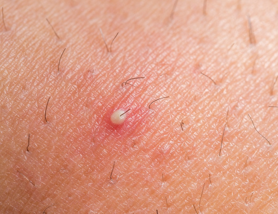 ingrown hair removal causes prevention selfhacked