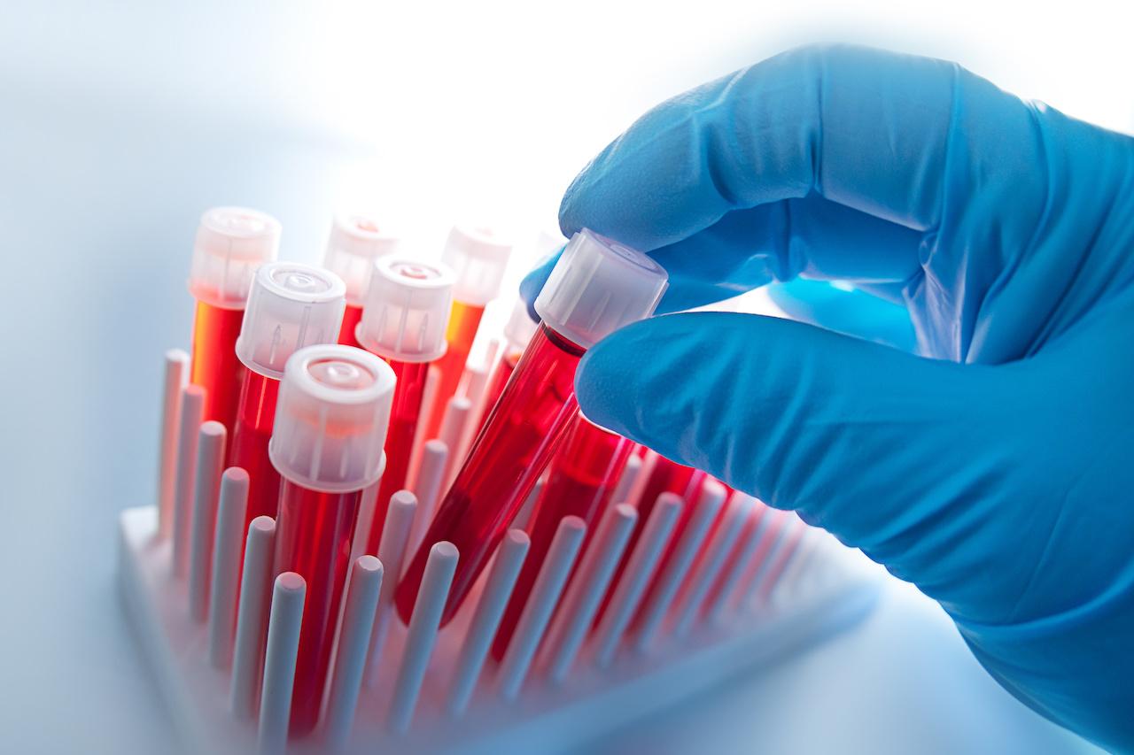 Alkaline Phosphatase Blood levels