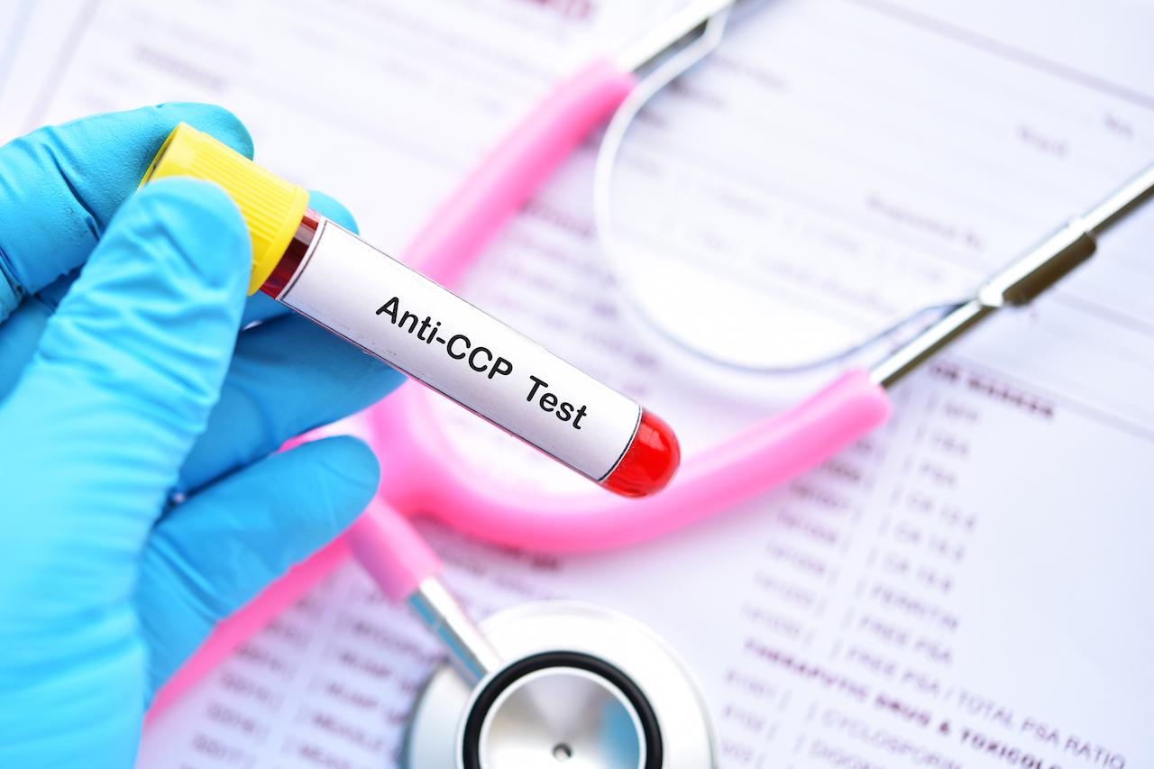 Anti-CCP antibody Test