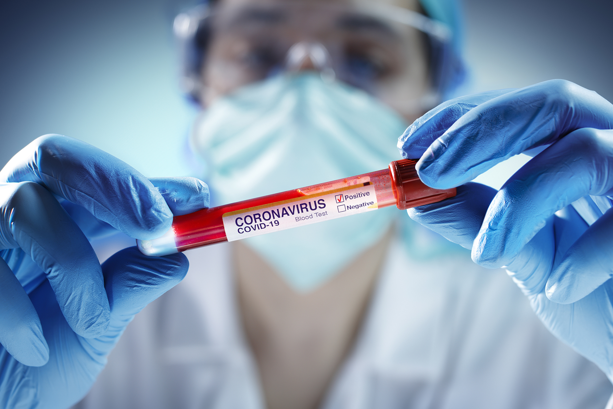 Lab tests & COVID-19