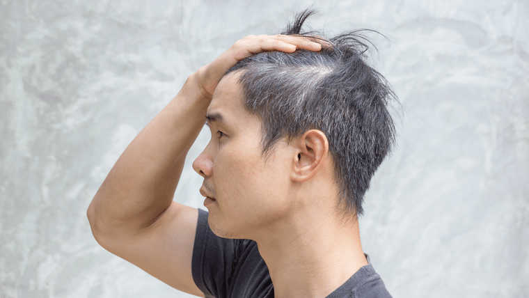 Top 24 Ways To Delay Graying Hair - SelfHacked