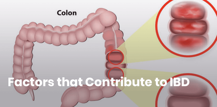 15 Hidden Causes of IBD (Ulcerative Colitis and Crohn's