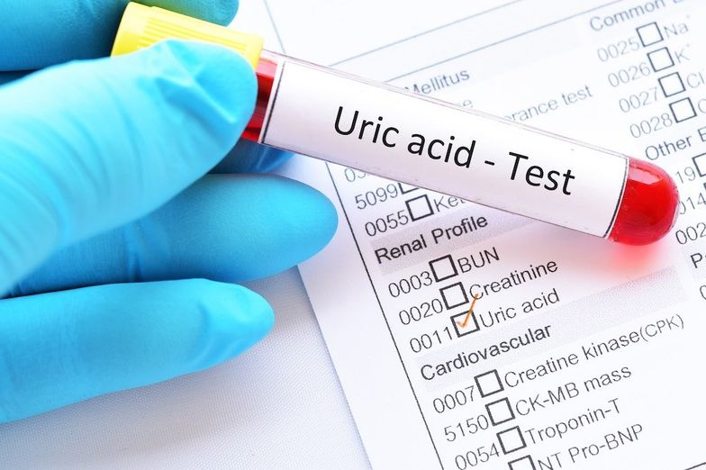 Why Low Uric Acid is Bad & What You Should Do About It